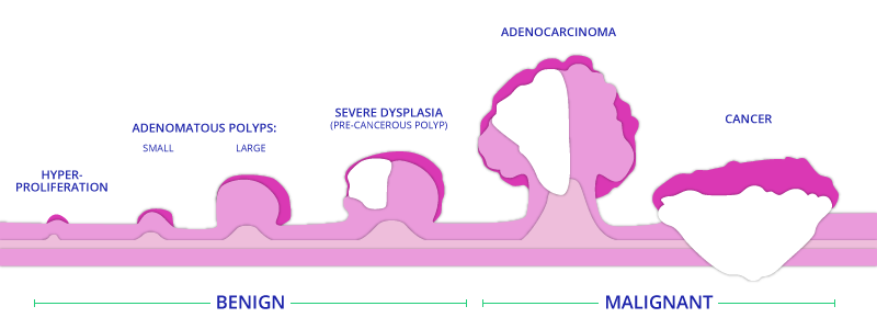 Rectal Cancer Staging Diagram of Benign and Malignant Stages for TAMIS Surgery